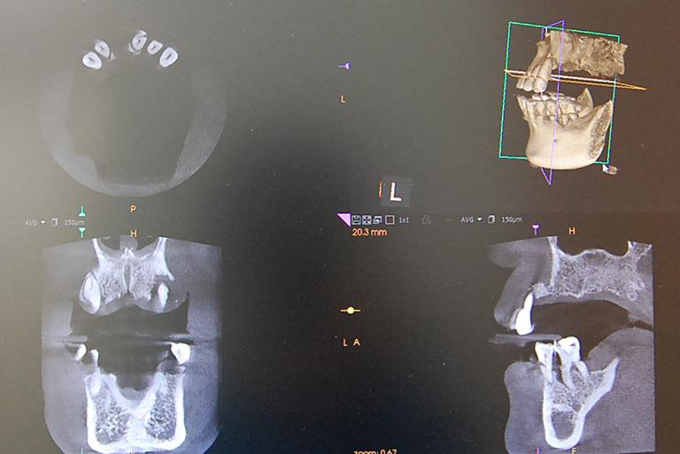 先進医療機器CT