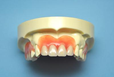 柔らかい入れ歯